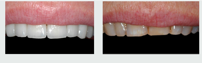 ציפוי לשיניים - לפני ואחרי
