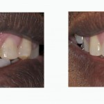 יישור שיניים