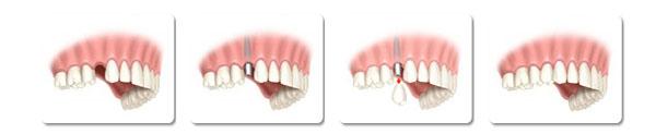 השתלת שיניים - השתלת שתל בודד