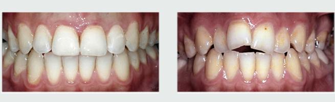 אינויזליין - יישור שיניים לפני ואחרי