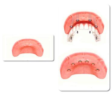 השתלת שיניים בלסת שלמה