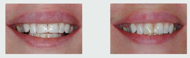 ציפויי חרסינה - לפני ואחרי