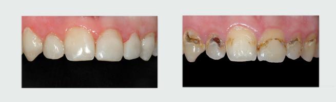 ציפוי שיניים לפני ואחרי