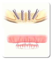 השתלת שיניים - העמסה מיידית