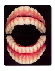 השתלת שיניים בשיטת ה ALL ON FOUR