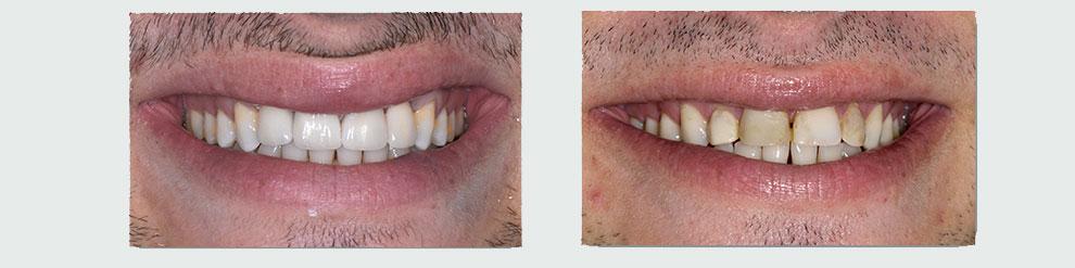 זרקוניה וכתרי זירקוניה במרפאת השיניים בכפר סבא