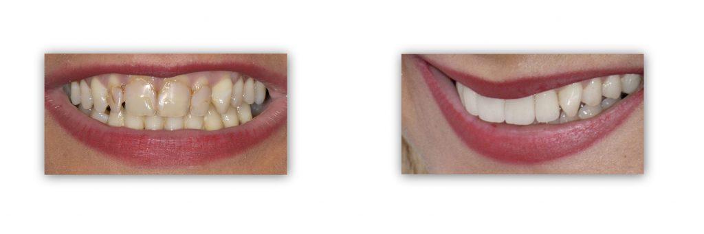 ציפוי שיניים לפני אחרי
