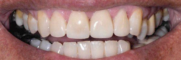 כתמים בשיניים - לפני ואחרי