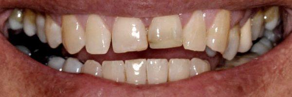 כתמים בשיניים - לפני טיפול