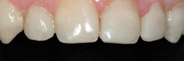 הלבנת שיניים: לפני ואחרי