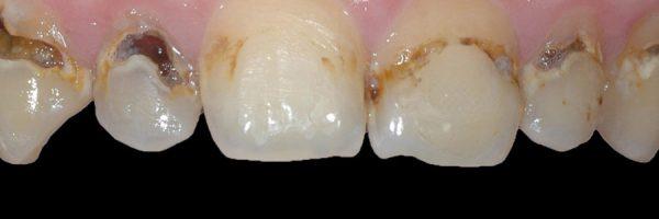 שיניים שחורות עם כתמים לפני ציפוי או הלבנת שיניים:
