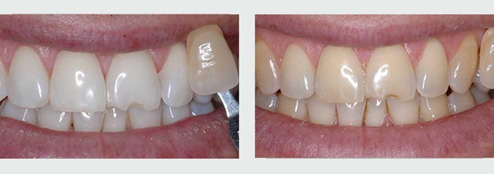 הלבנת שיניים על ידי קשתיות שקופות