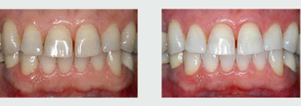 הלבנת שיניים תוך שעה במרפאה