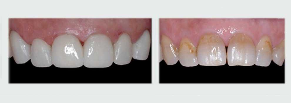 הלבנת שיניים בעזרת ציפוי חרסינה