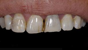 לפני כתרי חרסינה - שיניים שחורות