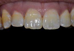 כתמים בשיניים הקדמיות