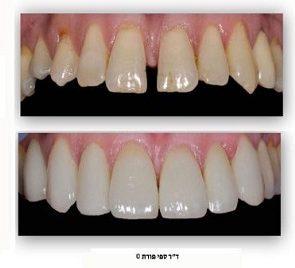 ציפוי שיניים שנראה נהדר