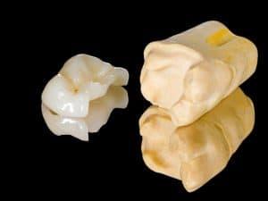 ציפוי חרסינה להשלמת שן