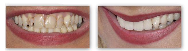 """ד""""ר ספי פורת - ציפוי שיניים"""