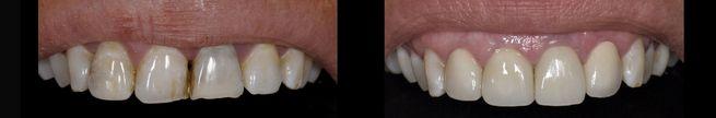 """ד""""ר ספי פורת -ציפוי שיניים"""