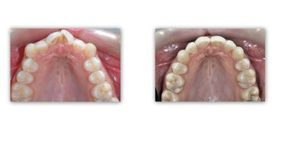 יישור שיניים - ד