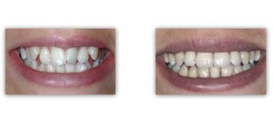 יישור שיניים -ד