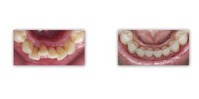יישור שיניים למבוגרים - ד