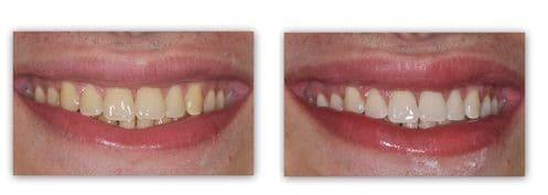 הלבנת שיניים - ד