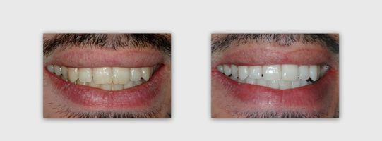 הלבנת שיניים בשעה - ד