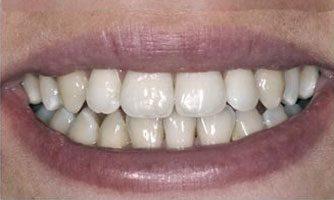 """ד""""ר ספי פורת - יישור שיניים אחרי"""