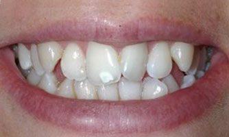 """ד""""ר ספי פורת - יישור שיניים לפני"""