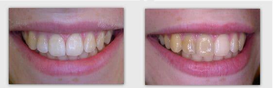 """הלבנת שיניים - ד""""ר ספי פורת"""