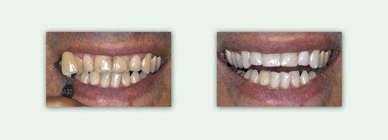 """הלבנת שיניים - ד""""רספי פורת"""