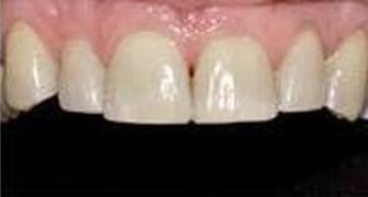 שיוף שיניים: לפני ואחרי