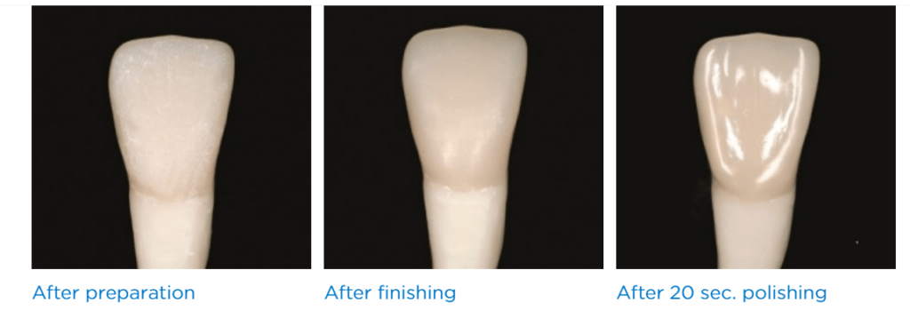 ליטוש קריסטלי לשיניים