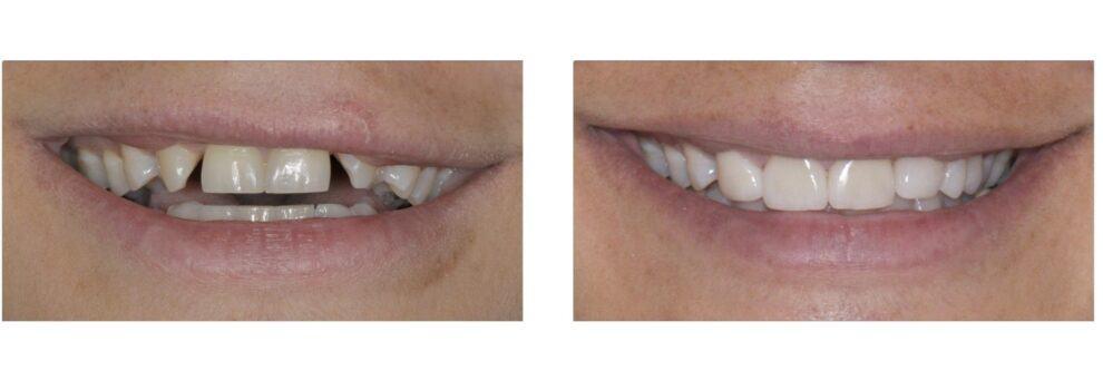ציפוי קריסטל לשיניים לפני ואחרי